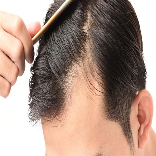 cheap fue hair transplantation turkey