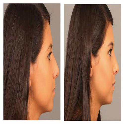 about rhinoplasty, clinicways