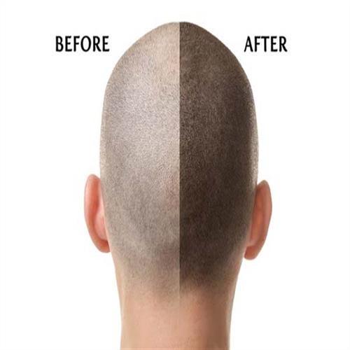 after hair transplantation, hair transplantation turkey