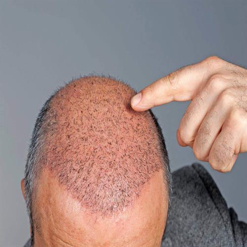 hair transplantation in turkey, cheap hair transplantation clinicways