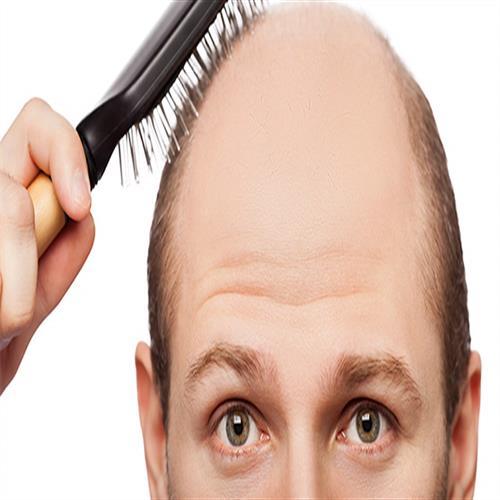crown hair transplantation technique, antalya hair transplantation