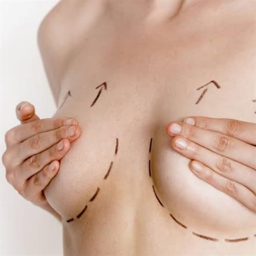 Bruststraffung turkey, clinicways