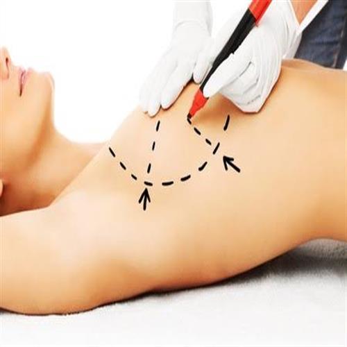 Brustwarzen-Korrektur, clinic ways