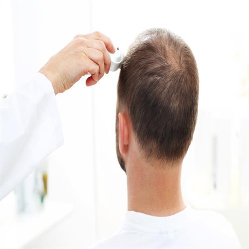 how to do hair transplantation, unshaved hair transplantation, hair crown transplantation