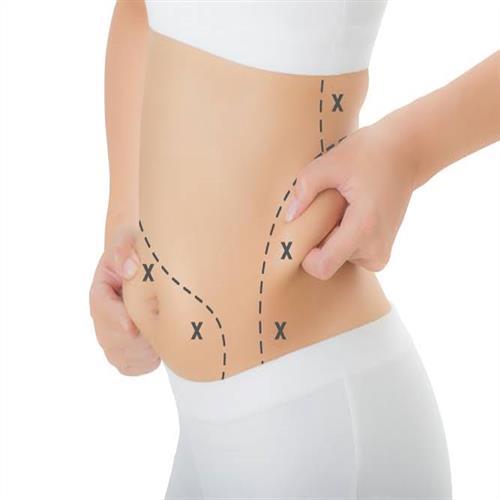 Abdominoplastik , clinicways, Bauchdeckenstraffung turkey, Abdominoplastik turkey,Bauchdeckenstraffung