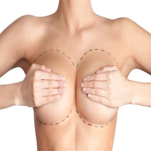 Breast Augmentation, clinicways, Breast Augmentation turkey