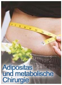 adipositas und metabolische chuirurgie , clinic ways, clinicways