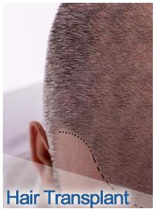 hair transplantation , clinic ways, clinicways